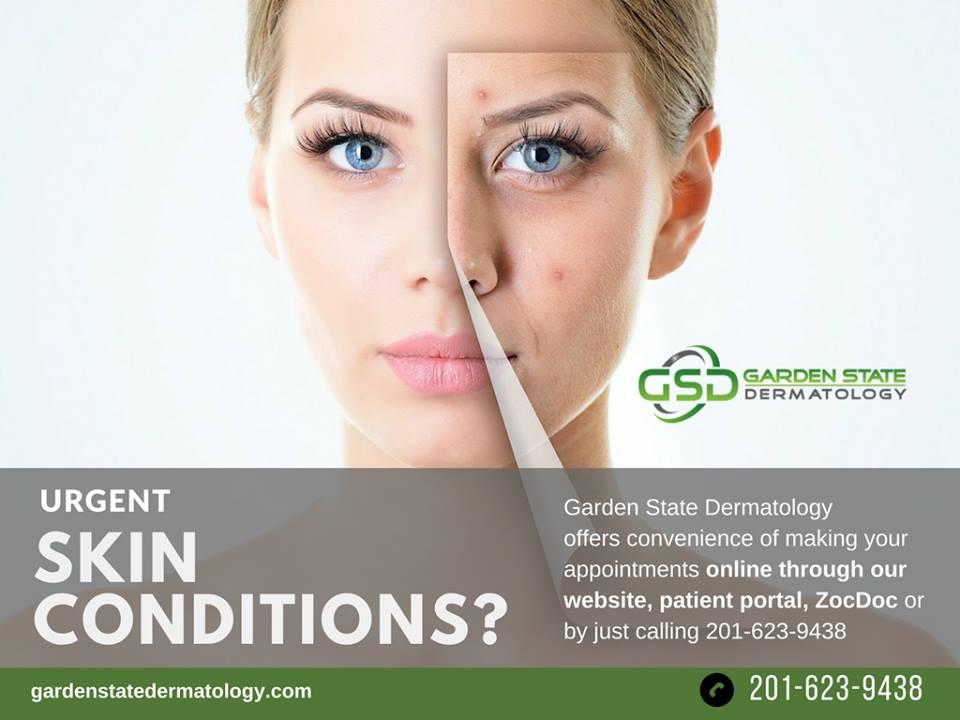 Garden State Dermatologist in Fair Lawn, NJ for your skin care
